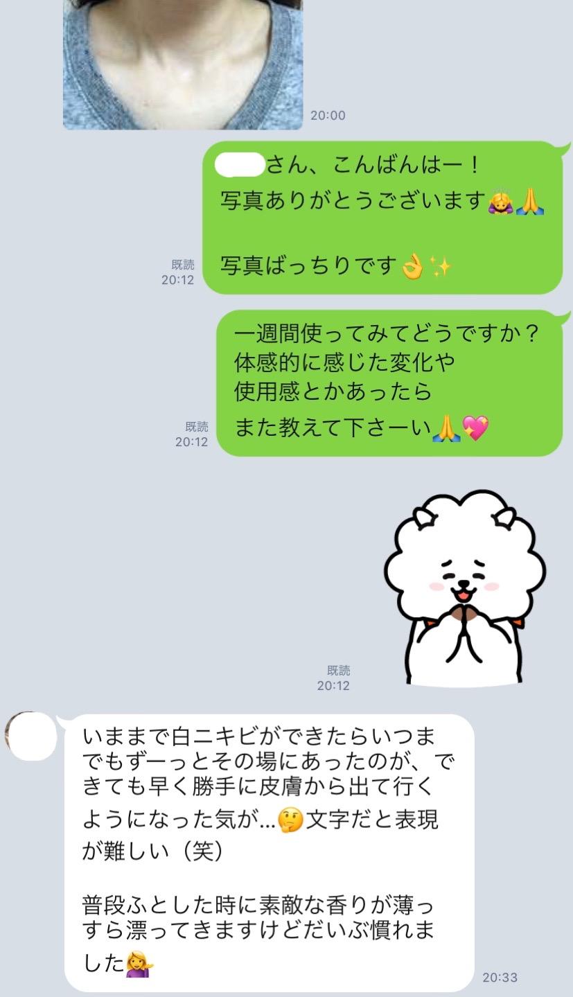 5/1 ニキビケア一週間目