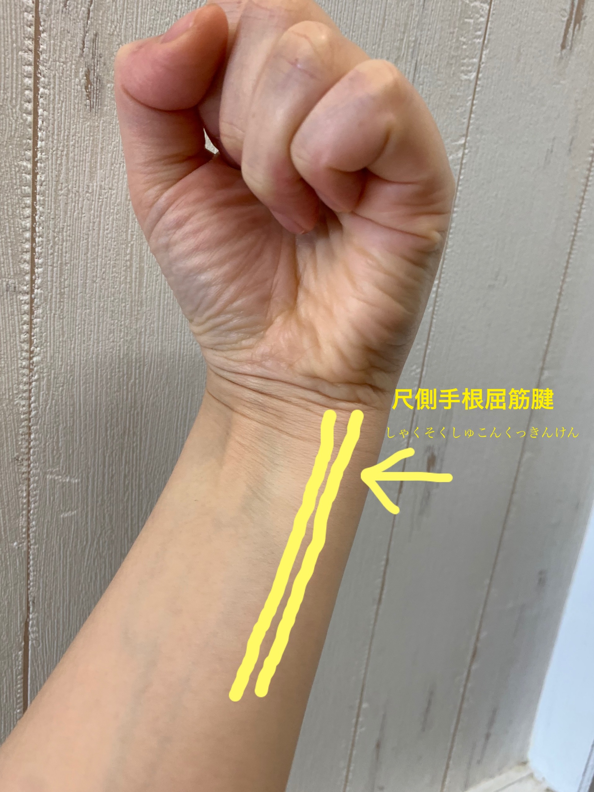 神門 尺側手根屈筋腱