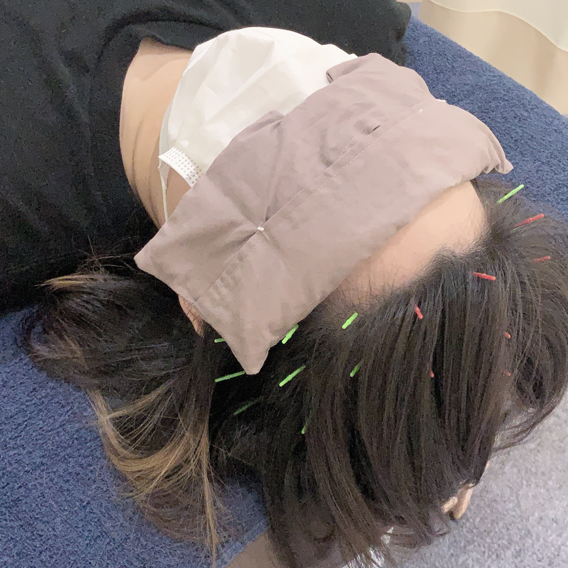 眠り鍼 施術内容